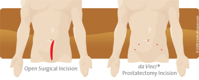 prostatectomy_comparison395x159 (1)