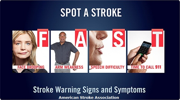 stroke FAST - ASA Attribution