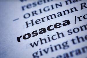 definition of rosacea