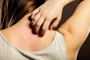woman scratching rash on her back