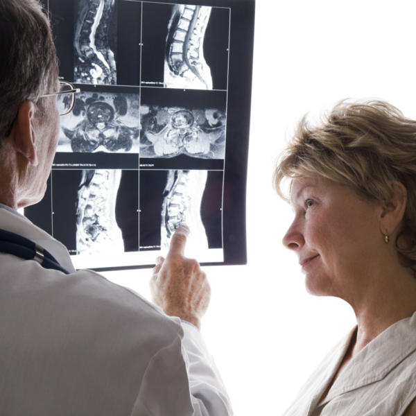 doctor and patient examining spine X-rays