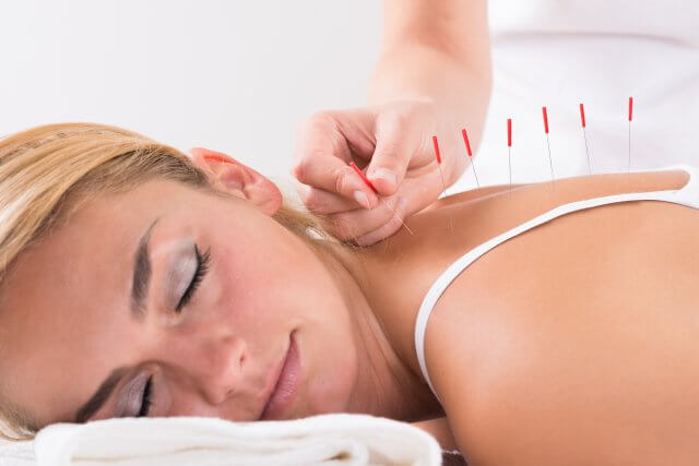 Woman Getting Acupuncture