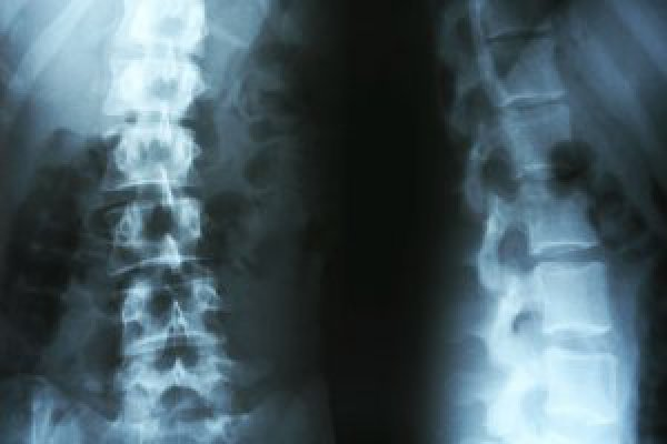 Image for 4 Early Warnings Signs of Scoliosis You Shouldn't Dismiss